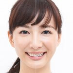 渋谷(表参道)|気づかれにい歯の矯正治療!経験豊富なオススメ歯科医はココ!